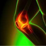 Acupuncture Alleviates Knee Arthritis Pain