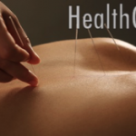 Acupuncture MRI Shows Lasting Pain Relief
