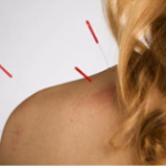 Acupuncture Relieves Neck Pain and Numbness