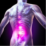 Acupuncture Relieves Sciatica, Reduces Inflammation